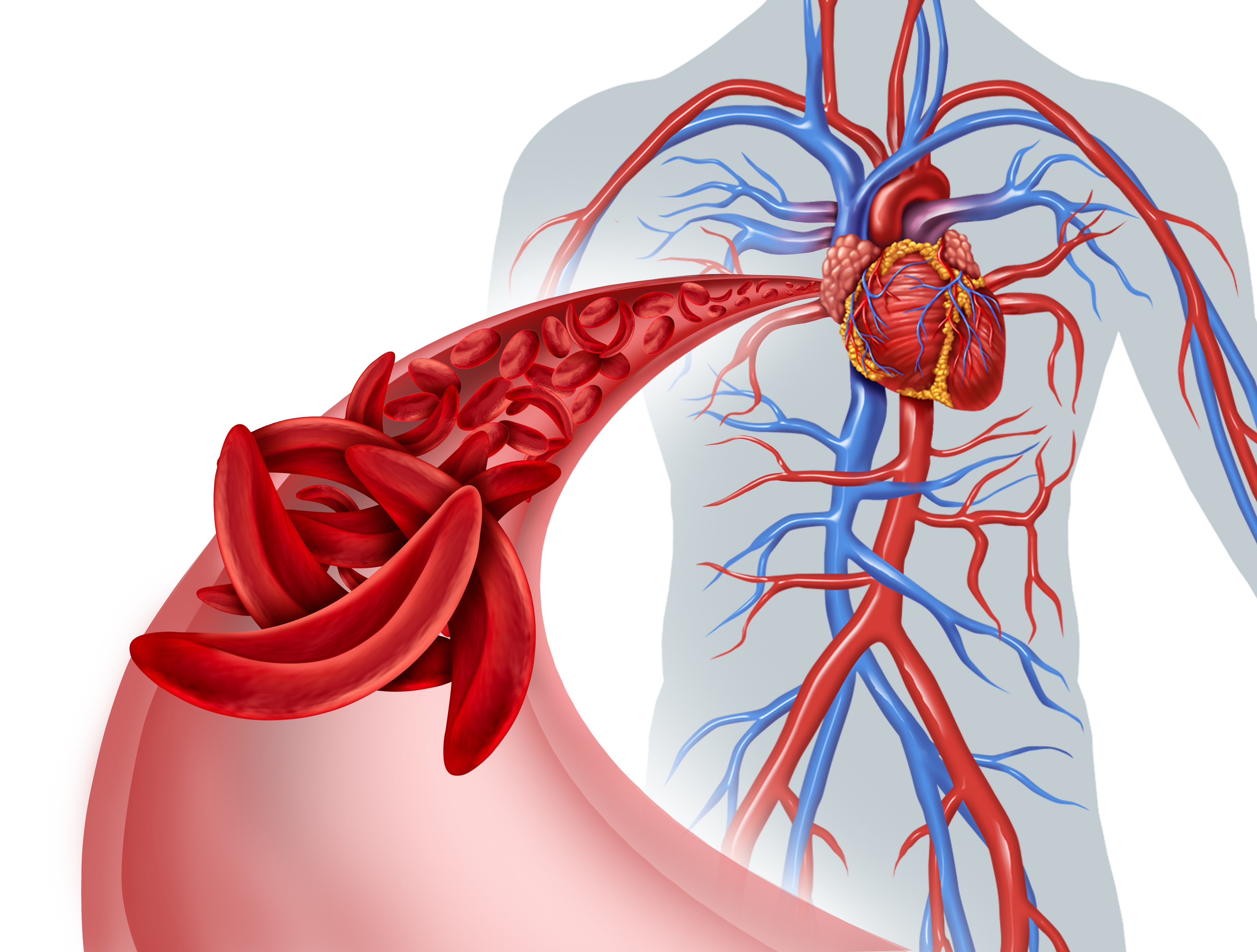 Sickle Cell Disease and the Heart Banner